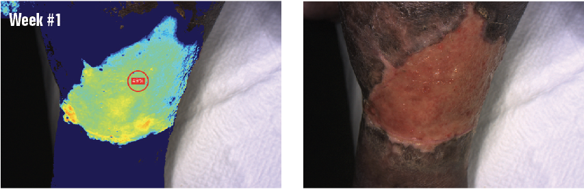 A 56-year-old patient with type 1 diabetes, neuropathy, calciphylaxis, renal dysfunction, degenerative joint disease, hypertension and an ABI of 1.02 has had a chronic wound on her left lower leg and foot for 16 months. The initial wound measurement was 9.5 cm x 9.8 cm x 0.1 cm. The baseline tissue oxygenation at the wound site was 49%.