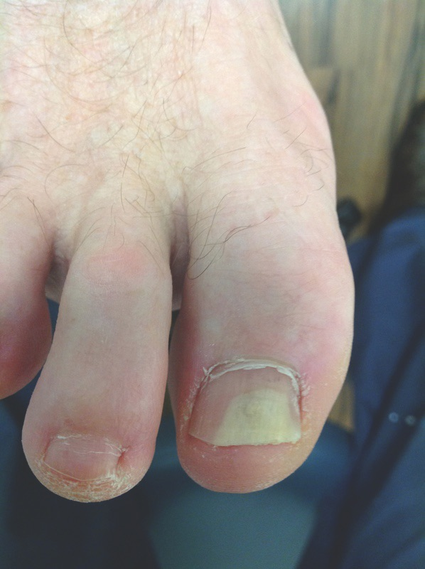 This photo shows a hallux nail with onycholysis. The lifted area is usually smooth and white because of the presence of air under the detached nail plate.