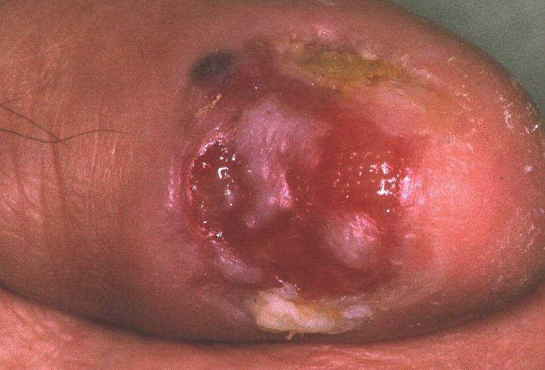 This photo shows a patient with a sparsely pigmented melanoma, which was diagnosed after avulsion of a dystrophic nail. Photo courtesy of Eckart Haneke, MD.