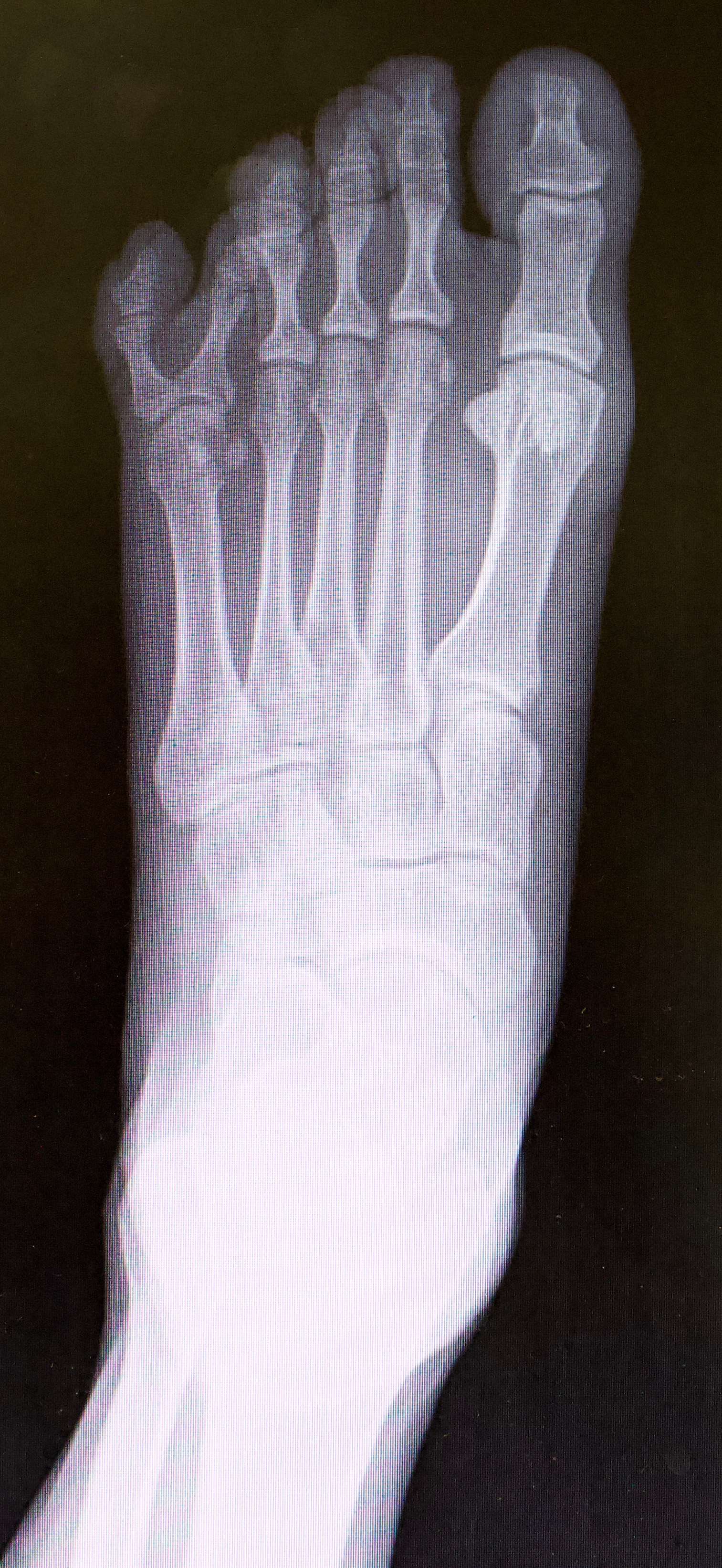Here one can see a dorsoplantar radiograph showing fifth digit polydactyly.
