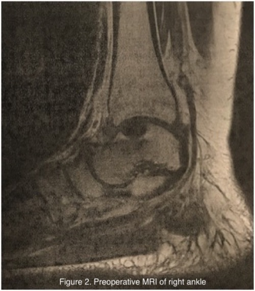 This MRI image reveals ankle arthritis and subtalar fusion with a large talar dome lesion surrounding the surgical hardware.