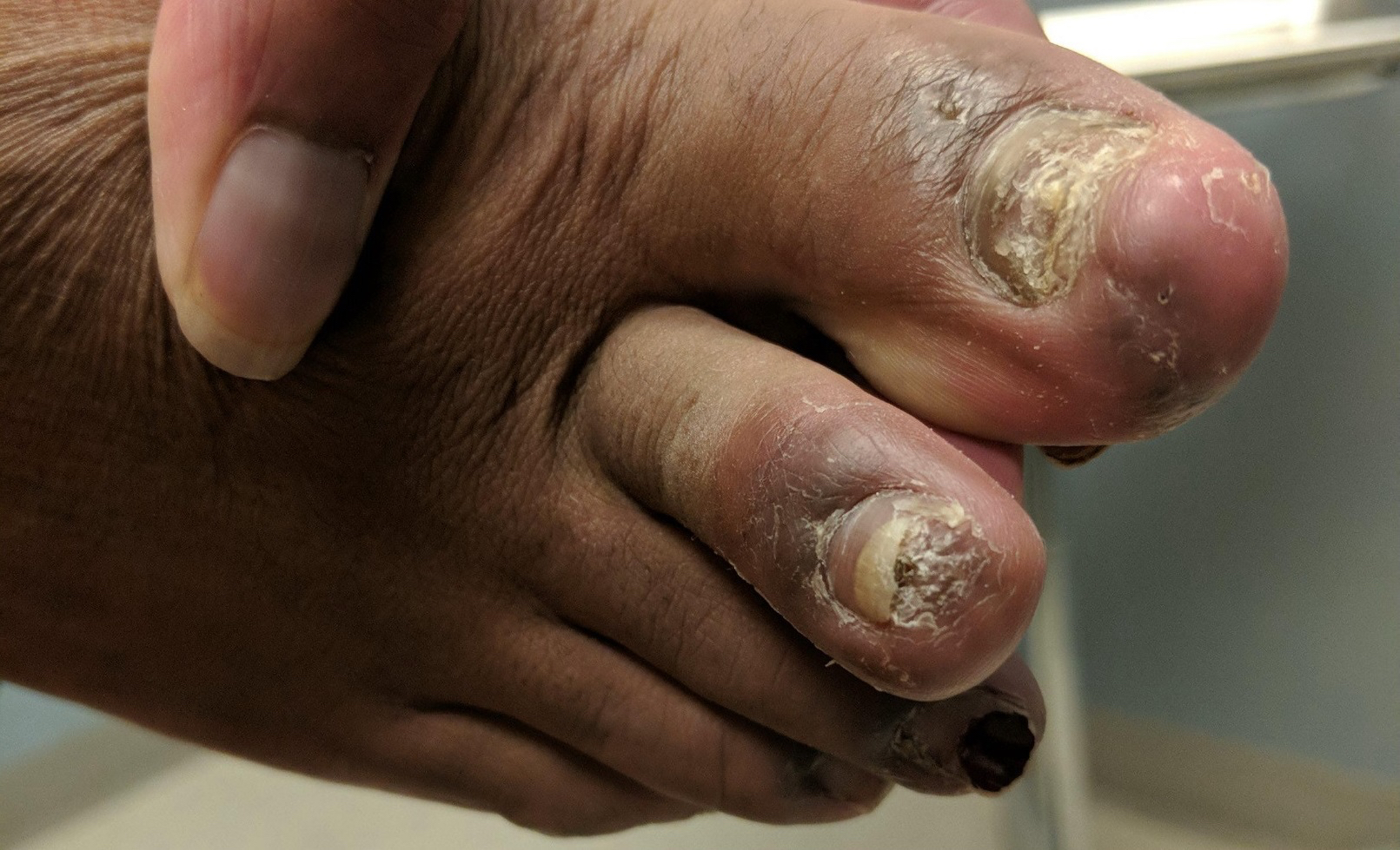 Key Questions To Consider: 1. What is the likely etiology of these nail abnormalities? 2. What treatment options exist for nail and nail fold pathology resulting from systemic lupus erythematosus? 3. How can you advise patients on the prognosis of nail and nail fold disorders associated with systemic lupus erythematosus?