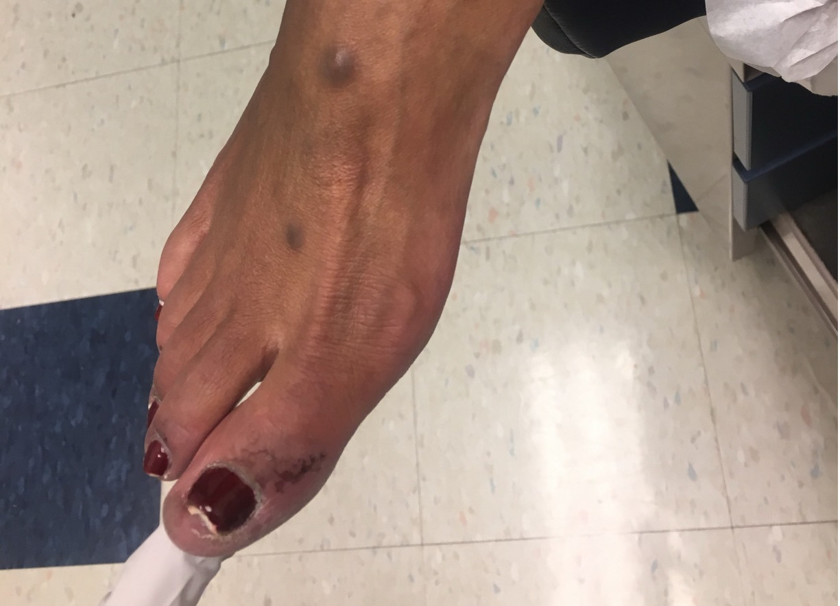 In this photo, one can appreciate periungual irritation and discoid lesions on the dorsum of the patient's foot. Nail plate changes of the great toe in a patient such as this may be due to systemic lupus erythematosus or may be the result of onychomycosis secondary to the use of immunosuppressant medications.