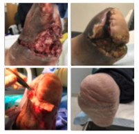 After a TMA and Achilles tendon lengthening, a patient with a history of diabetes and hypertension developed a dehiscence with significant skin necrosis and exposed bone. Aggressive wound debridement, Kerecis Omega3 Wound graft application and NPWT helped facilitate total wound closure 10 months after the index surgical procedure.