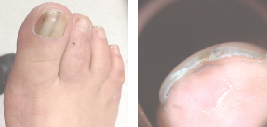These photos show a hallux with melanocytic activation of the nail unit and the tip of the toe. These changes were negative for melanoma as confirmed by punch biopsy at the tip of the toe and a nail matrix biopsy.