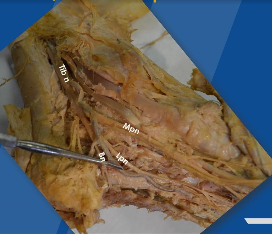 In this cadaveric dissection, the abductor hallucis muscle and the fascia of origin have been resected. It is easy to see the neural anatomy of the medial ankle and how easily a varicose vein may compress the tunnel. Also note how closely the lateral plantar nerve (Lpn) and Baxter's nerve (Bn) course to the plantar fascia, and note the tibial nerve (Tib n) and medial plantar nerve (Mpn).