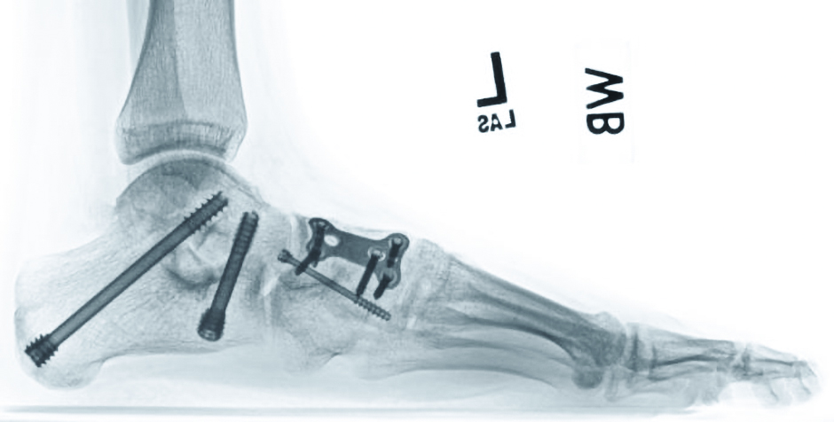 This postoperative weightbearing radiograph at 10 weeks demonstrates deformity correction and complete arthrodesis of the subtalar and naviculocuneiform joints. Note that the alignment achieved with surgery mirrors the preoperative lateral reduction view.