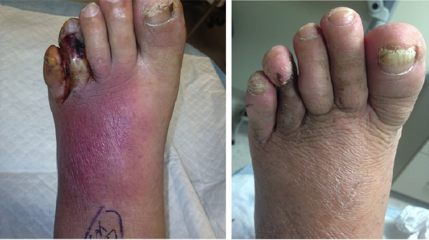 Note the before (left) and after (right) photos of a patient who received hyperbaric oxygen therapy (HBOT). When properly administered, HBOT is a safe option for foot and ankle conditions, but because some rare complications could be life-threatening, most hospitals require physicians who supervise therapy to undergo a 40-hour HBOT safety course. (Photo courtesy of David Swain, DPM, CWSP)