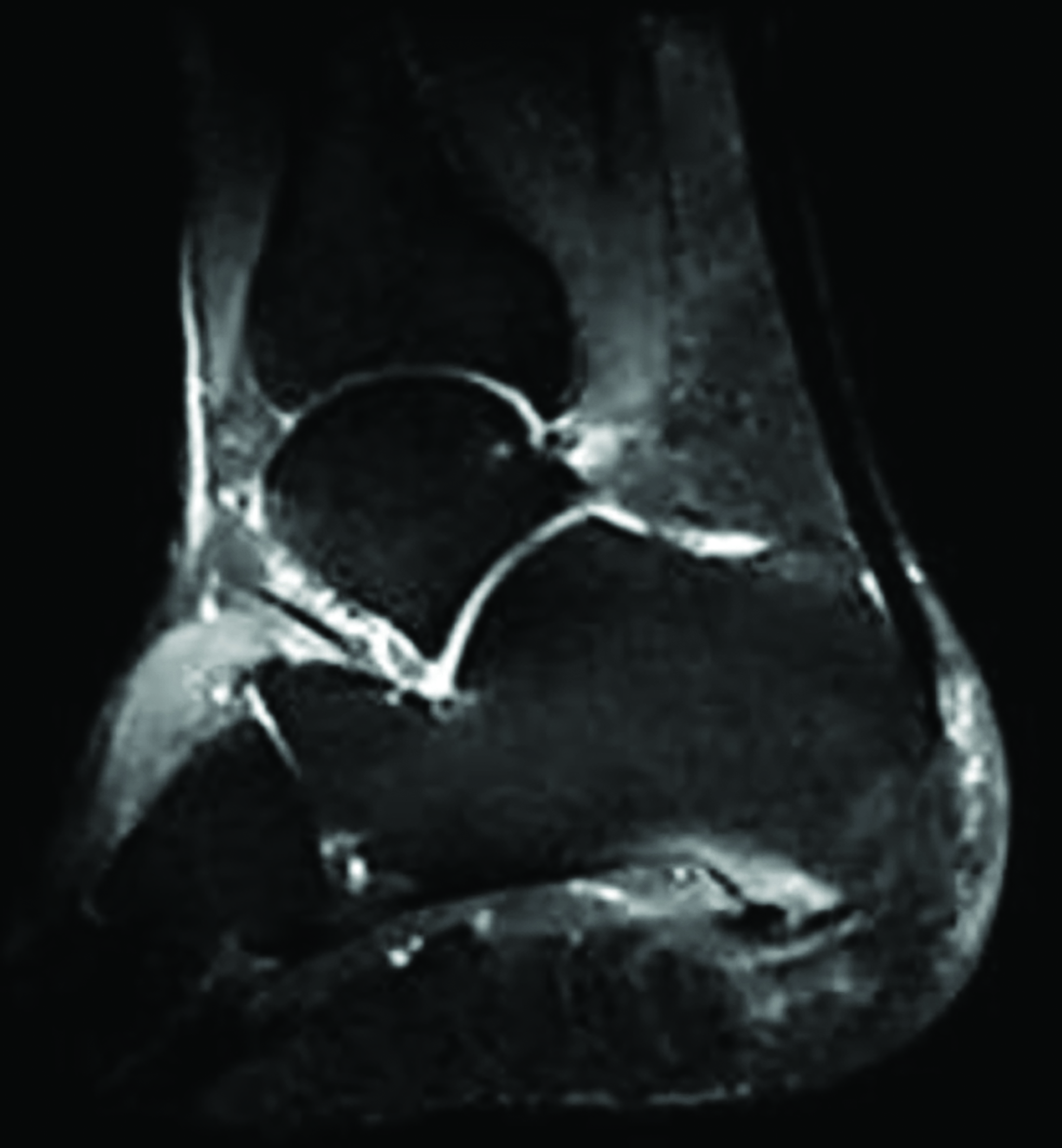 This T2 sagittal image from a magnetic resonance imaging (MRI) study of the hindfoot demonstrates bone marrow edema in the osseous region adjacent to the plantar fascia. This patient would be a candidate for subchondral stabilization of the calcaneus as an adjunctive surgical procedure.