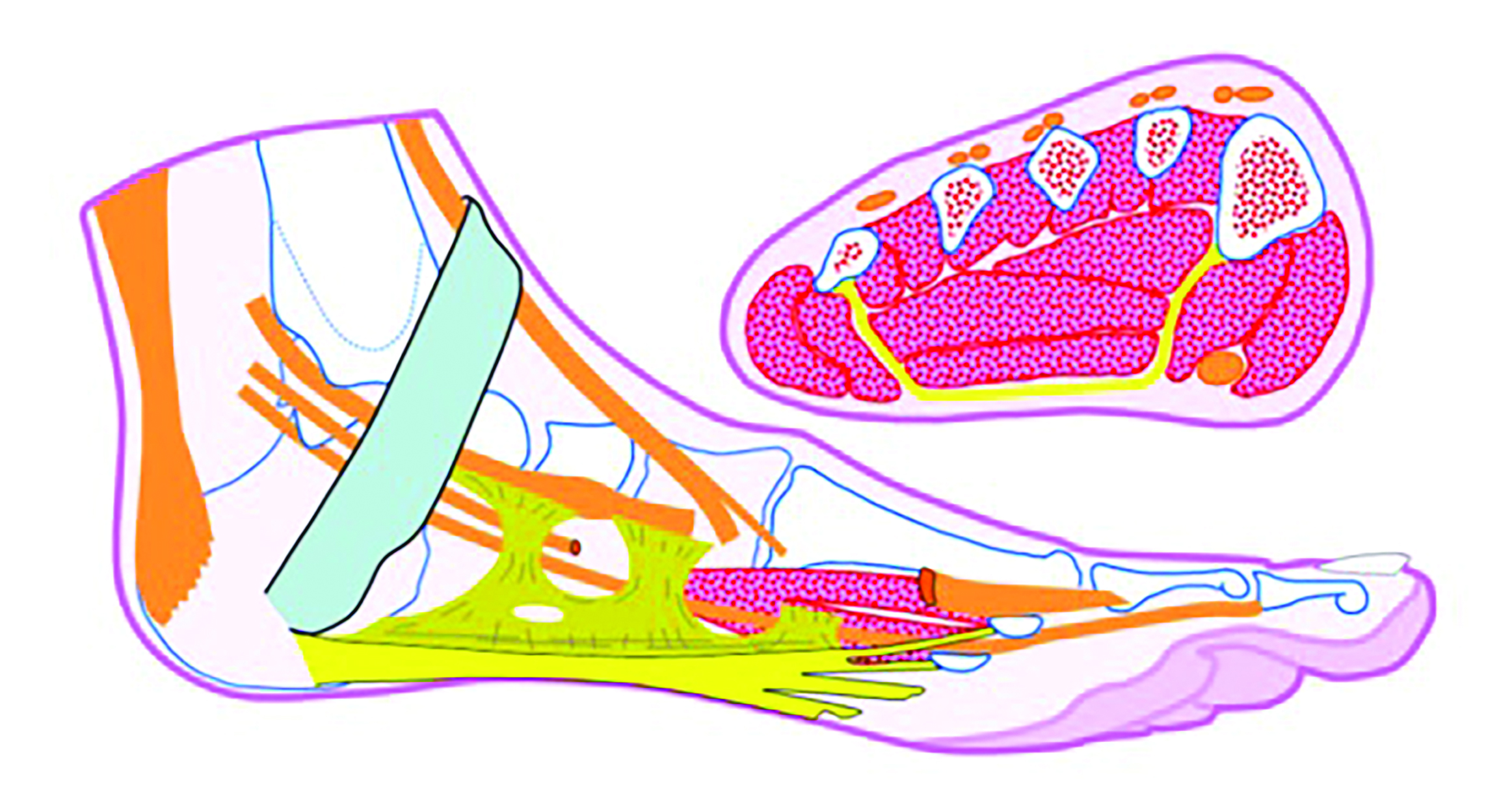 In this graphic, one can see that the plantar fascia forms the deep fascia of the foot and serves as a partial origin for flexor digitorum brevis. The medial and lateral bands of the plantar fascia are variable in nature whereas the central band (yellow) in continuous with the intermuscular septae, and is thought to play a critical role in foot function. It is also most commonly implicated in plantar fasciitis.