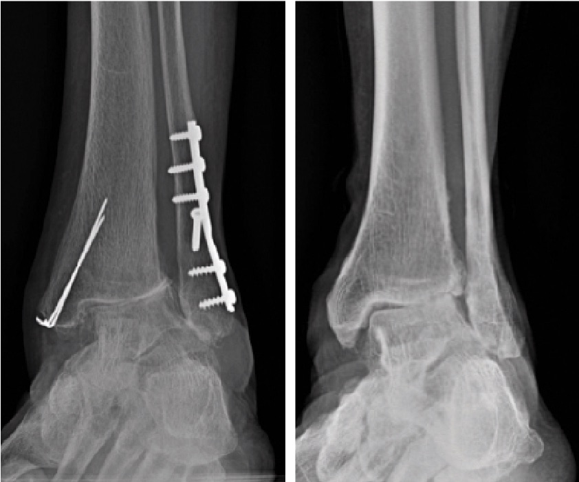 Chronic valgus imbalance correction may require the release of lateral tissues and reinforcement of medial tissues. Ryan McMillen, DPM, FACFAS, says ligamentous balancing may be necessary in order to fully address larger deformities.
