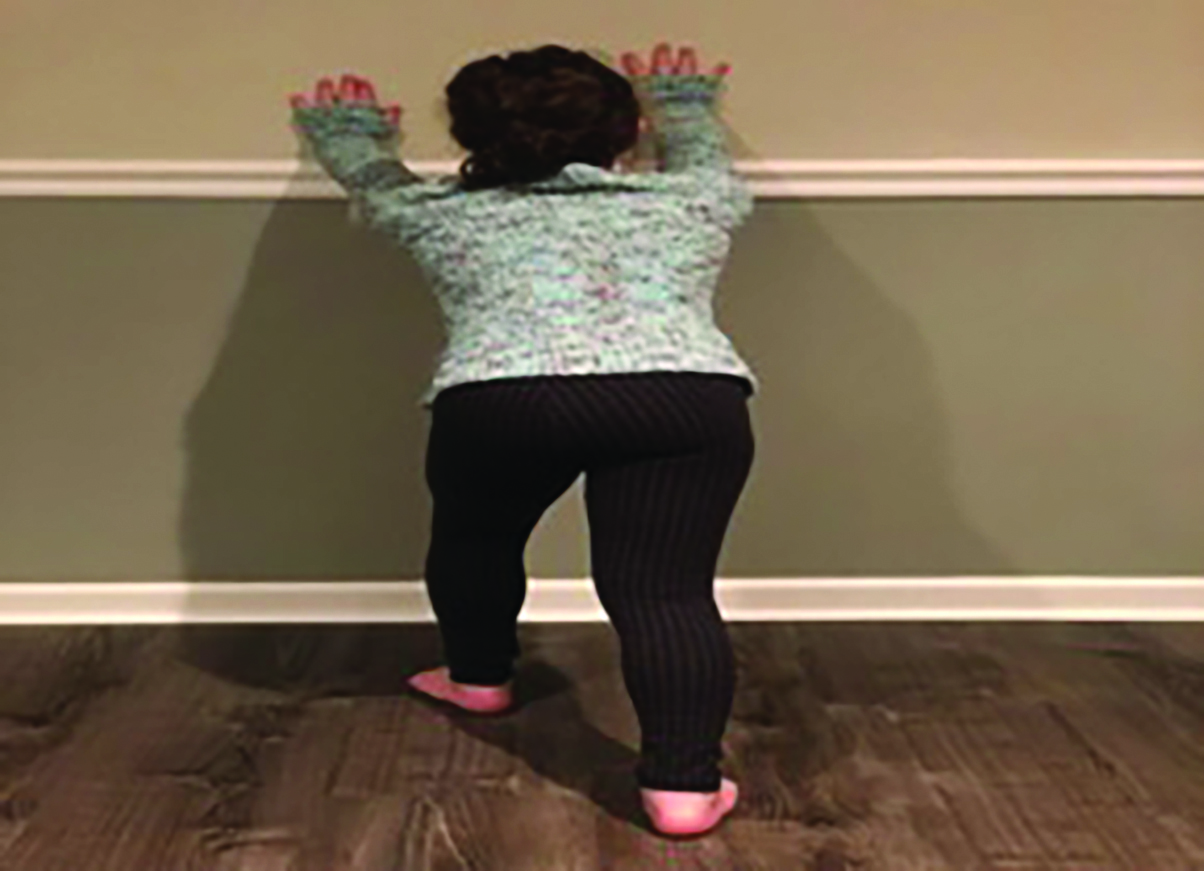 As one can see in this photo illustrating a wall stretch, instruction of appropriate stretching techniques is key to treatment for equinus in the pediatric patient.