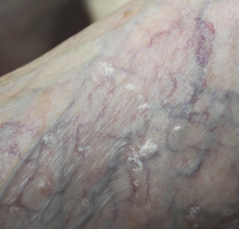 In this photo, one can see multiple white plaques consistent with actinic keratoses on the foot of an 88-year-old female with Fitzpatrick type 1 skin.