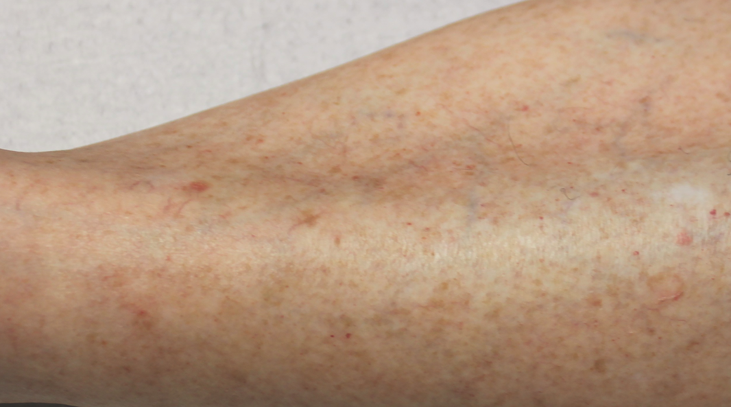 This photo shows a solar-damaged left shin of a 72-year-old female with brown and red lesions, and fine telangiectasias on a field of dyspigmentation.