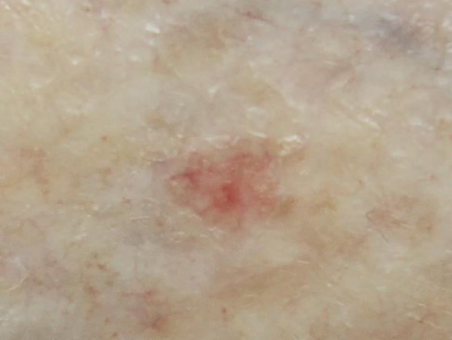 This photo shows a closer view of actinic keratosis on the shin of the same 72-year-old female. Note the dilated vessels on the pink background.