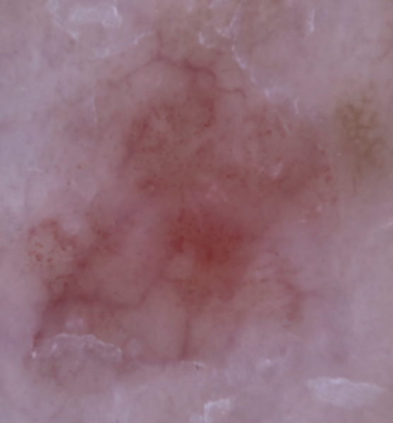 This is a dermatoscopic image of actinic keratosis in the aforementioned 72-year-old female patient. Note the linear and wavy dilated vessels on an erythematous background.