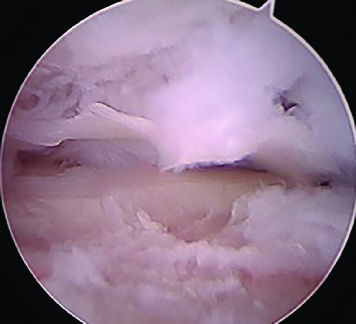 Here one can see arthroscopic images depicting significant arthrofibrosis with grade III-IV chrondromalacia in a patient  after talar ORIF. Ahn and colleagues noted arthrofibrosis among common arthroscopic findings in their case series.