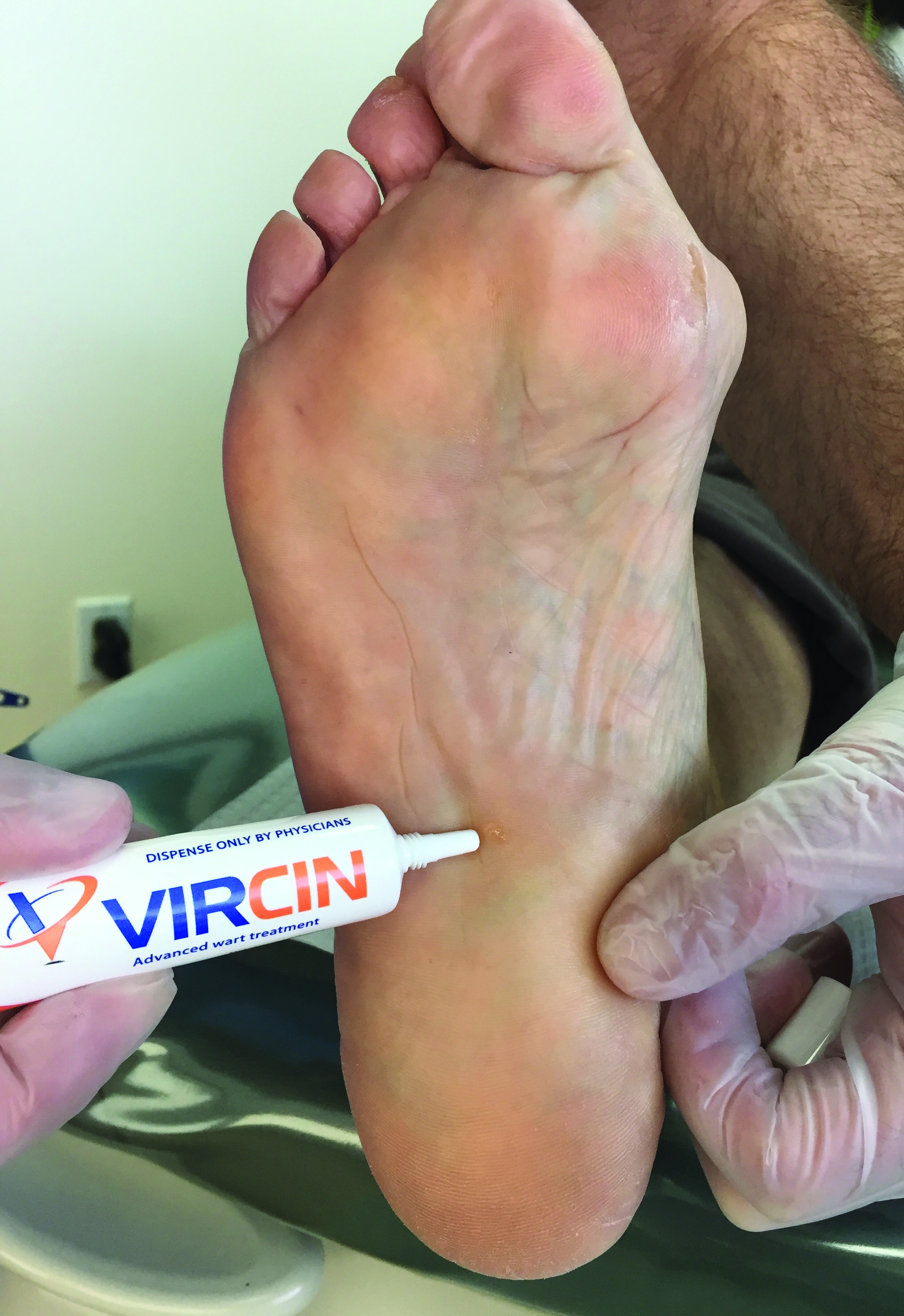 Here one can see the use of Vircin. The authors note significant success with twice-a-day application of the product.