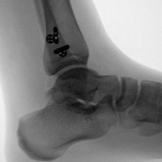 This lateral radiographic view shows the reduced position of the fibula and syndesmotic implants.