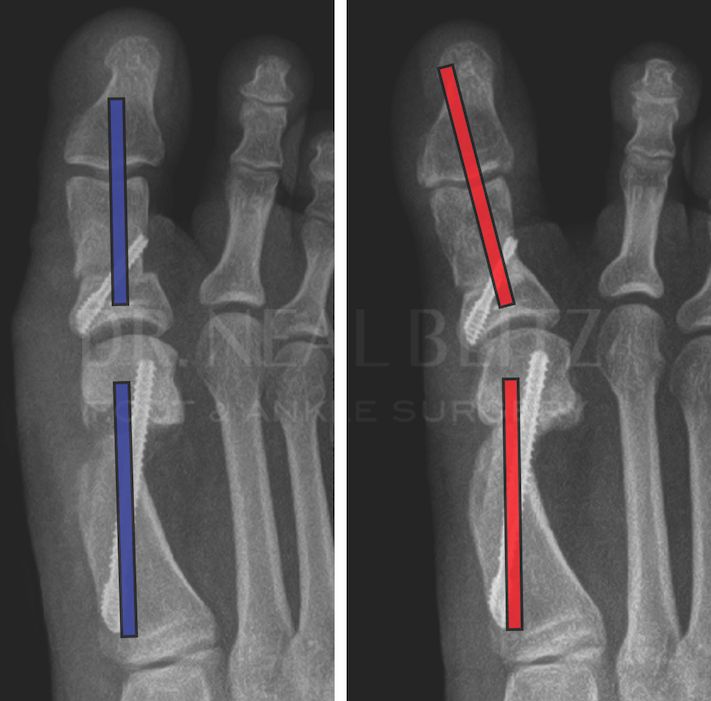 Minimally invasive bunion surgery is not immune to hallux varus development. As one can see in the above imaging, hallux varus ensued despite anatomical metatarsal head alignment and proper sesamoid position, pointing to muscular imbalance as the etiology.