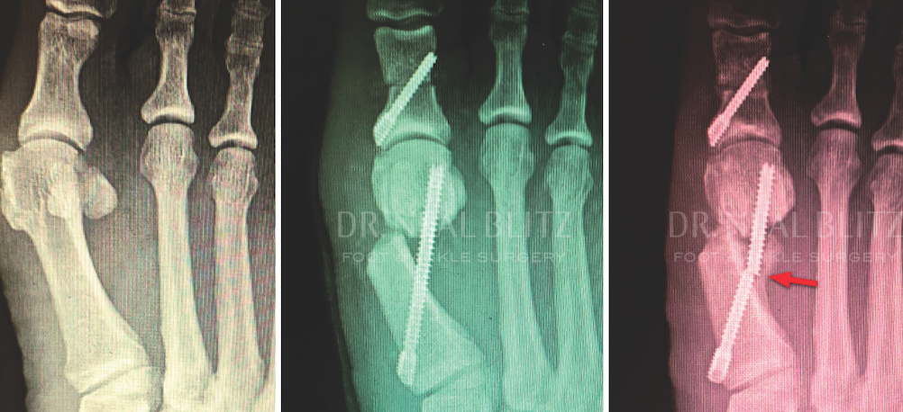 Broken hardware can occur with minimally invasive bunion surgery, resulting in loss of position and nonunion.  Surgical approaches involving two screws seem to provide more stability to the fixation construct as a whole.