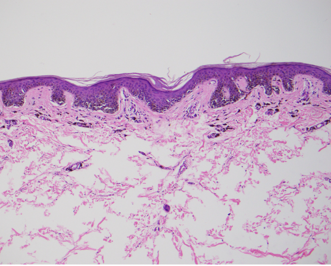 After the author performed a four mm punch biopsy, the subsequent pathology report noted an intra-epidermal proliferation of nested and solitary, intermediate-sized melanocytes that were predominantly located along the dermal-epidermal junction. The pathology report also noted minimal scatter of melanocytes within the spinous layer, minimal nuclear atypia and a positive Melan-A immunohistochemical stain.