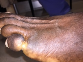 Upon physical examination, the patient in this photo presented with constriction band of the left fifth digit proximally at the proximal phalanx with edema to the distal aspect of the digit with hyperpigmentation. There were no signs of infection present to the digit.