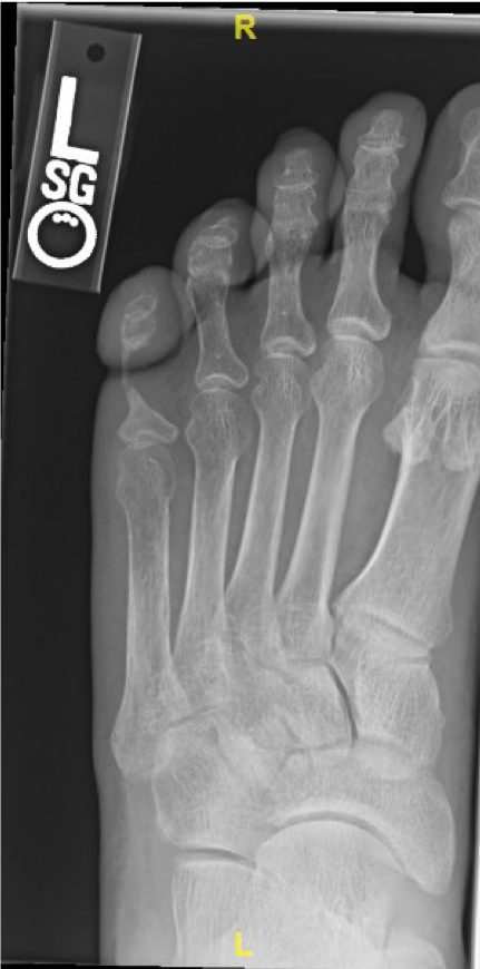 Radiographic imaging studies of the left foot, as seen in this photo, showed deformity of the left fifth proximal phalanx with thinning of the shaft and head with smooth margins.