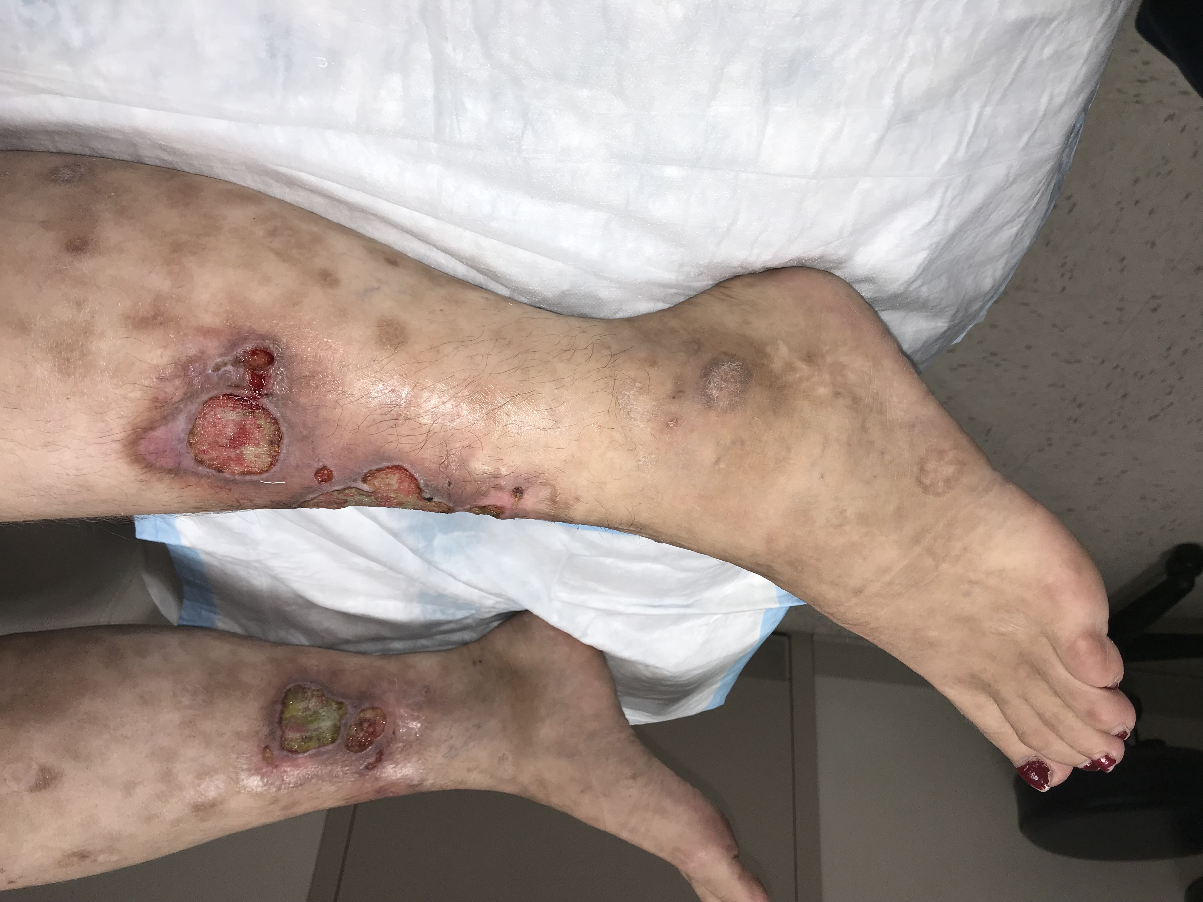 This patient's wound cultures showed no growth. Venous doppler was negative for lower extremity deep vein thrombosis (DVT). Bilateral leg X-rays did not show any pathology and chest X-rays were also clear. Ulcer tissue biopsy confirmed a diagnosis of polyarteritis nodosa.