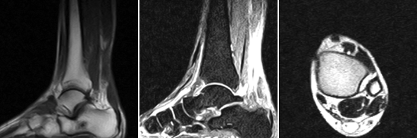 The left T1 image shows an Achilles tendon rupture with a four cm defect. The middle T2 image also shows the rupture with hyperintensity of the defect, as does the T2 axial image on the right.