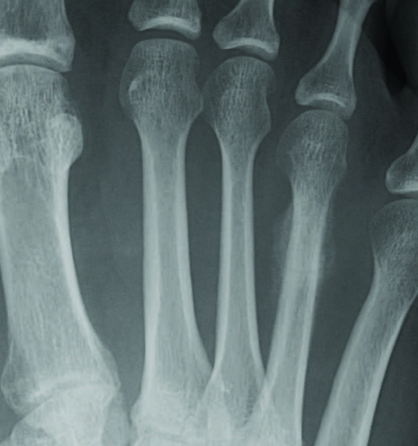 This radiographic view shows a fourth metatarsal stress fracture. In cases such as this, intrinsic factors, such as hormonal, medical abnormalities, age and nutritional status, are important to consider