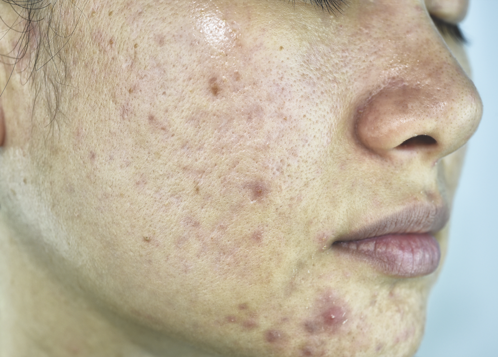 The Role of the Microbiome in Acne | The Dermatologist