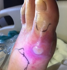 This photo exhibits clinical findings of non-blanchable purpura and blister formation of the left foot.