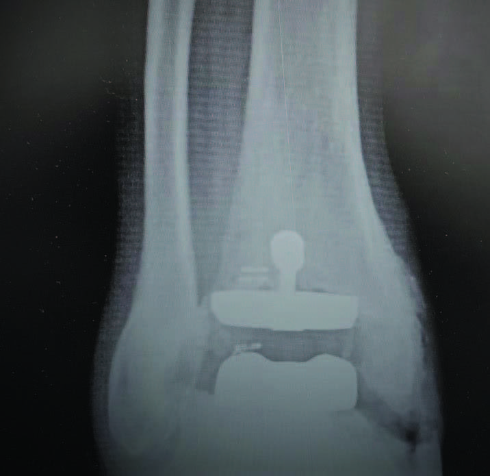 In this radiographic image, one can see the same ankle after revisional arthroplasty to address the gutter impingement. The goal is to realign the joint to take pressure off of the symptomatic gutter.