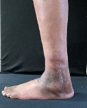 This photo shows the postoperative clinical appearance of the foot and ankle.