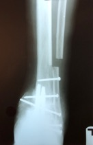 Here one can see a postoperative weight bearing radiographic image of the patient in question