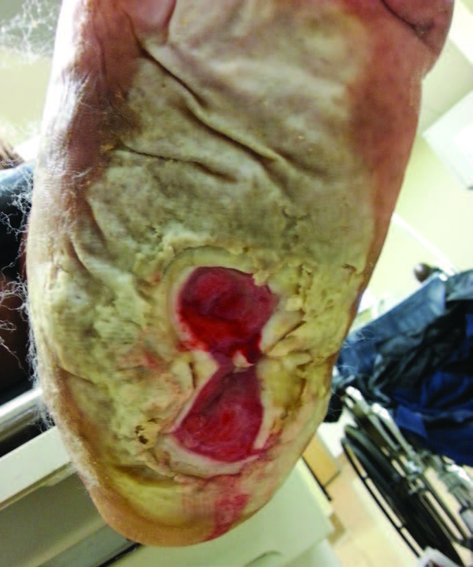Despite appropriate offloading with a total contact cast, a patient remained in a wet cast for several days, leading to significant maceration of the surrounding skin as shown in the above photo.
