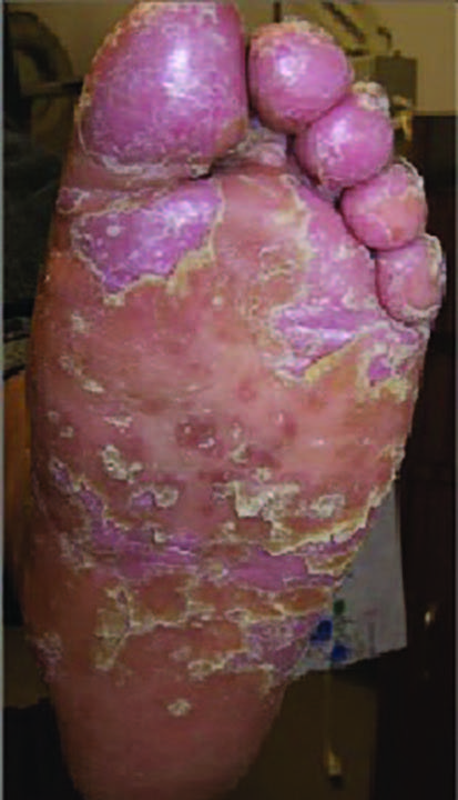 """The National Psoriasis Foundation recommends those who are on systemic and/or biologic therapy should remain on therapy unless they develop a COVID-19 infection,"" says Tracey C. Vlahovic, DPM, FFPM, RCPS (Glasg). (photo courtesy of Tracey C. Vlahovic, DPM)"