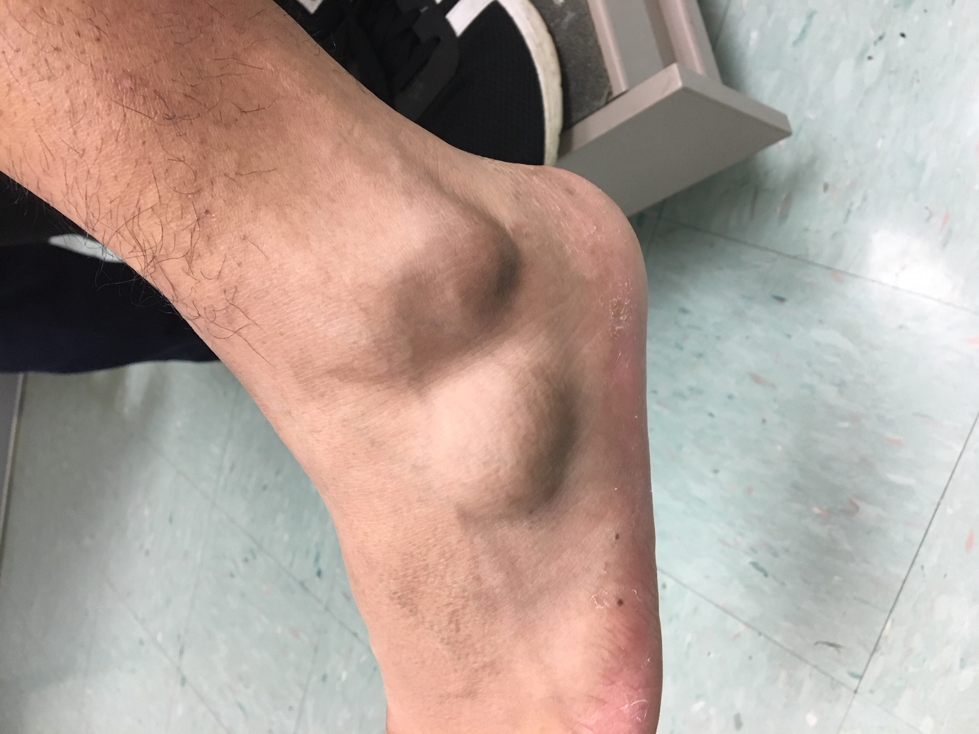 "Here one can see the lateral mass to the left foot and ankle. The patient complained of a ""knot"" on his lateral foot and ankle, which was becoming larger in size and increasingly painful."