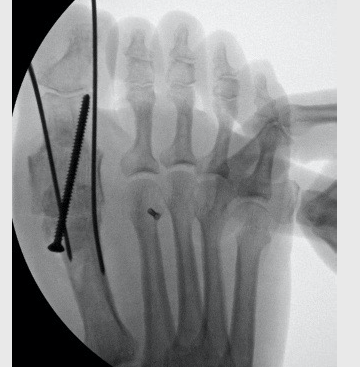 In this intraoperative radiographic image, one can see the insertion of a tricortical cancellous bone block autograft into the first MPJ with a positional screw maintaining position without compression. Following this, the surgeon applied a dorsal plate for additional fixation.