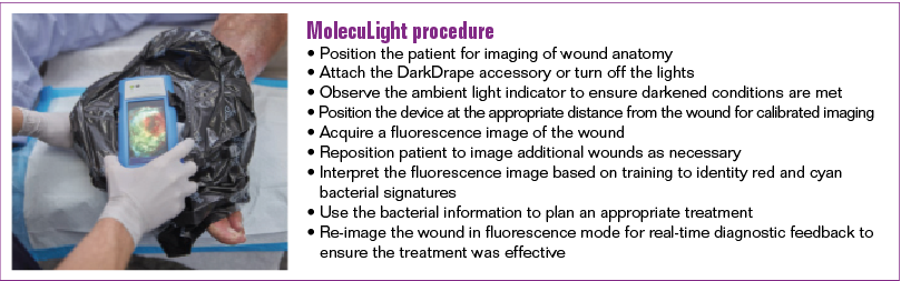 Figure 1. Example of how the MolecuLight i:X imaging device and DarkDrape are used to perform the fluorescence imaging procedure at point-of-care to detect bacteria (red or cyan fluorescence) in wounds. The single use DarkDrape is required when room lighting cannot be removed to create the darkness necessary to create interpretable results from the fluorescence imaging procedure. Regions of high bacterial loads are immediately apparent on the device screen. Images and videos can be captured for documentatio
