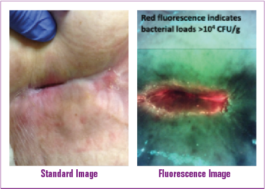 Figure 4. Standard and fluorescence images of a pressure injury captured using the MolecuLight i:X and DarkDrape. Presence of bacterial (red) fluorescence prompted the clinician to develop a new treatment plan to target removal of bacteria with more frequent wound hygiene and application of antimicrobial.