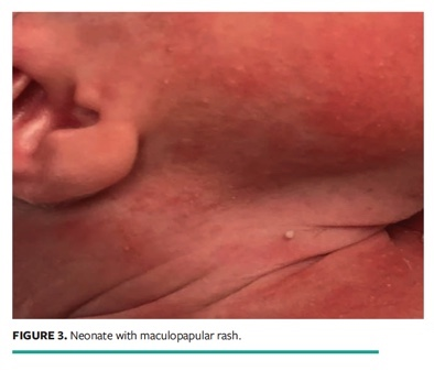 Cutaneous Manifestation During Covid 19 Don T Let The Rash Fool You Wound Management Prevention