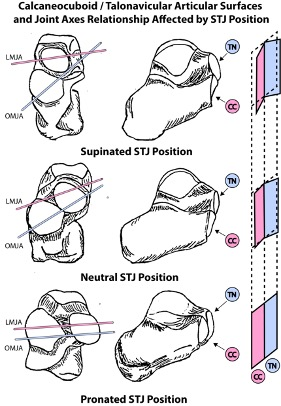 Midtarsal joint motion availability or suppression in the authors' experience is more likely determined by the relative orientation of the midtarsal joint articular surfaces as the STJ pronates and supinates.