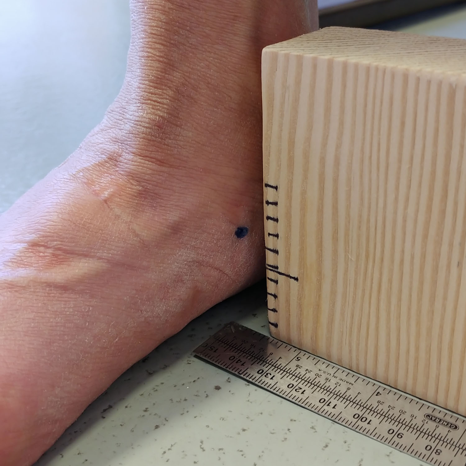 In this photo series illustrating navicular drop and drift, here the patient is standing. The block is marked in five mm increments. On the foot pictured, the drop is within normal limits (eight to 10 mm) and the drift is excessive by 14 mm. That person's foot would likely find a medial flange very uncomfortable, and therefore application of a medial arch platform to the positive cast may help. (Photo courtesy of Biomechanical Services)