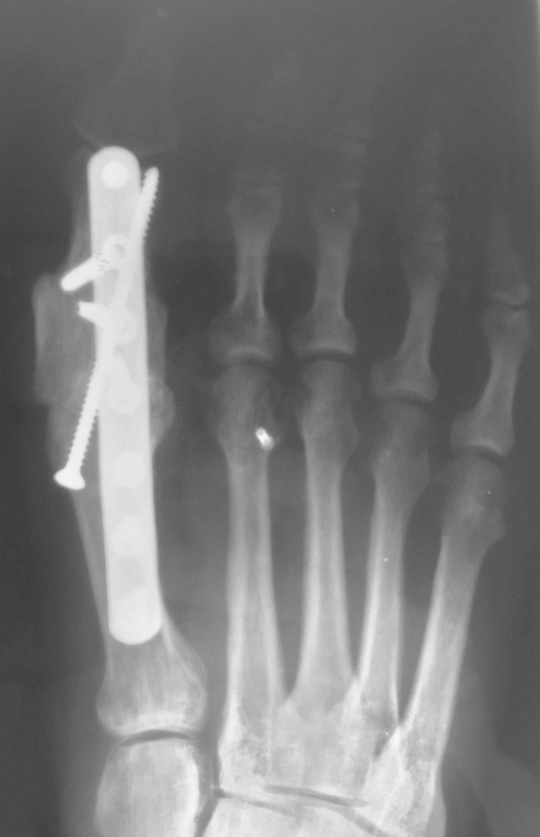In this postoperative radiographic image, one can appreciate demonstration of good incorporation of the autogenous tricortical cancellous bone graft harvested from the calcaneus into the large void at the first MPJ.
