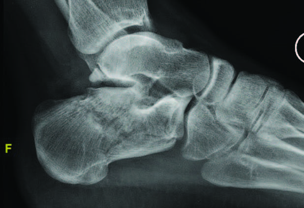 In this image, one can see a preoperative X-ray of a foot with a joint depression intra-articular calcaneal fracture.