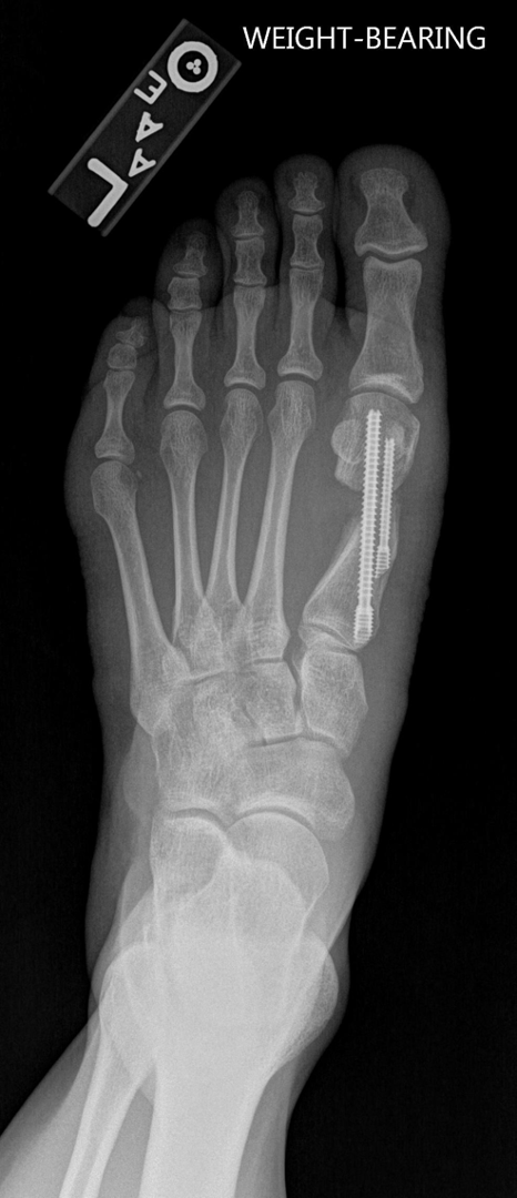 In recent years, one can note a resurgence of MIS procedures, as one can see in this radiographic image, in many aspects of foot and ankle surgery, says Dr. McAlister, who is in private practice in Scottsdale, Ariz. He asserts that MIS techniques in forefoot reconstruction are here to stay but challenges do still exist.
