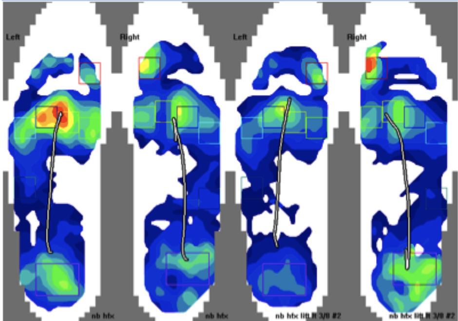In these images, one can see averaged stance phase of gait Center of Force pathways and pressure distribution patterns. The left images are without a lift and the right images show results with a left-sided lift. Note the obvious improvement in pressure distribution patterns indicating symmetrical function.