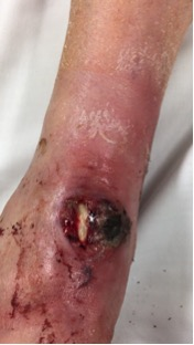 Here one can see a postoperative wound dehiscence after a patient received a total ankle arthroplasty. This is an example of an acute periprosthetic joint infection.